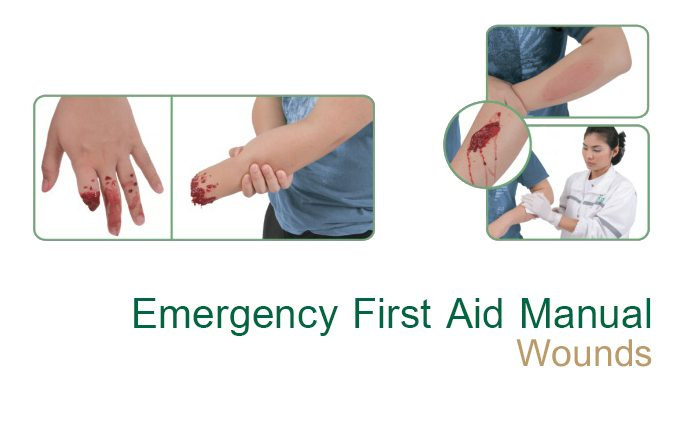 Emergency First Aid Manual - Wounds - Samitivej Hospital