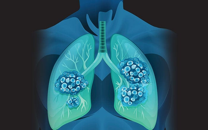 If lung cancer is identified early enough, survival is possible