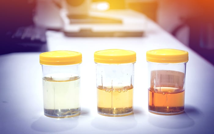The 7 Colors of Urine and Their Associated Health Indicators