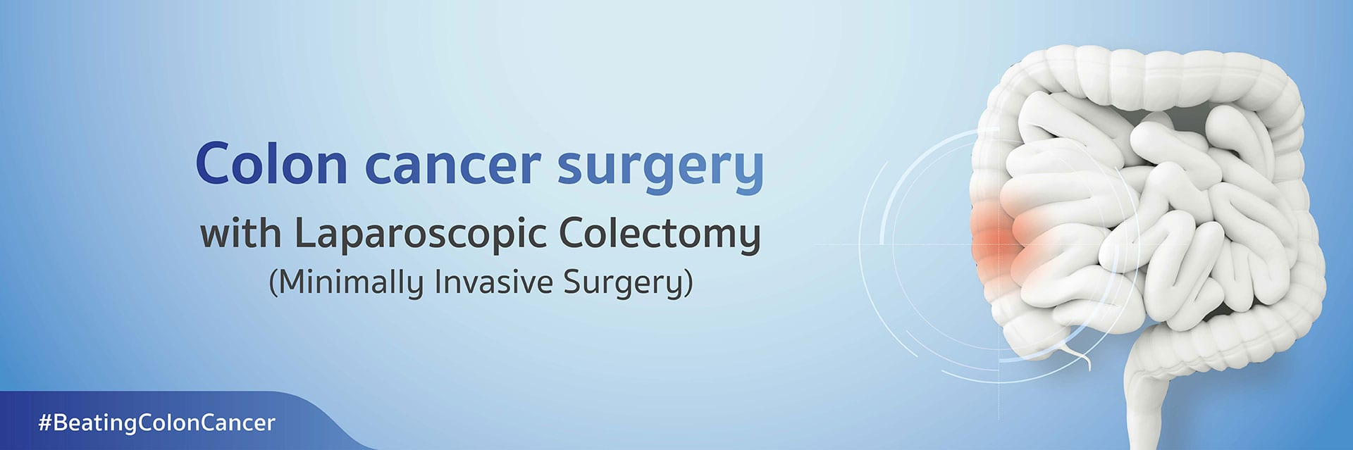 Colon cancer surgery with Laparoscopic Colectomy
