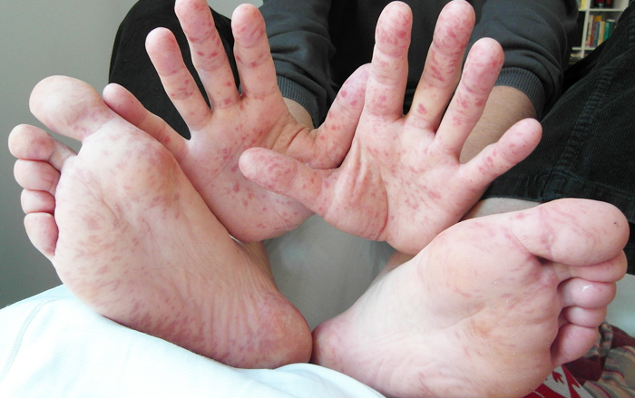 Hand_Foot_Mouth