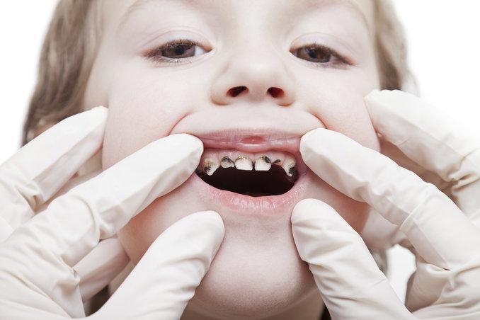rsz_decayed-teeth