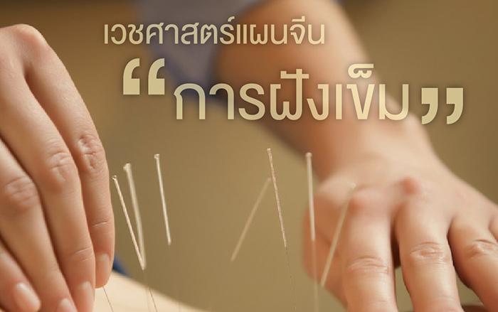 acupuncture-1024x598-01